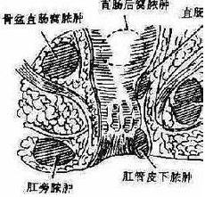坐骨直肠窝脓肿