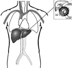 肝豆状核变性