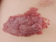 毛细血管瘤百科