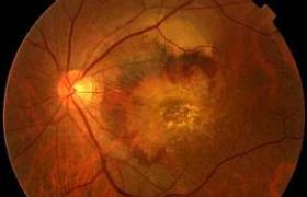 特发性黄斑部前膜