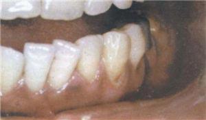 颌骨骨髓炎百科