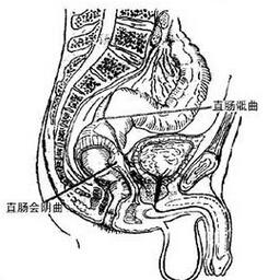直肠脱垂百科