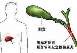 胆囊炎百科