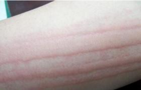 划痕性荨麻疹