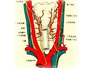 亚急性甲状腺炎百科