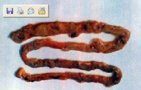 细菌性肠炎