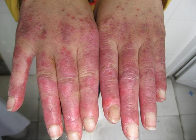 亚急性皮肤型红斑狼疮百科