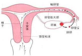 输卵管堵塞百科