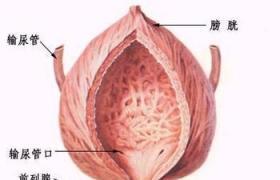 前列腺脓肿