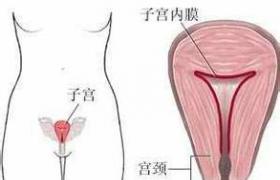 子宫内膜增生症