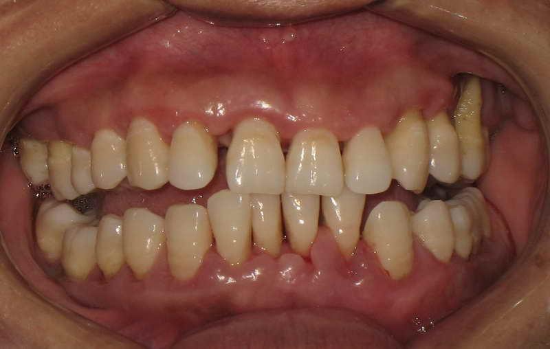 快速进展性牙周炎百科