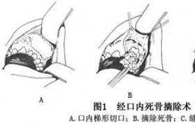 化脓性颌骨骨髓炎