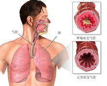 气管、支气管狭窄