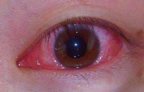 化脓性角膜炎