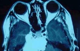 岩骨斜坡脑膜瘤