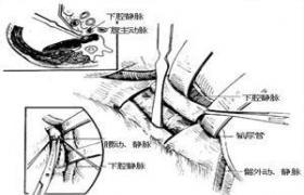 椎管内肿瘤