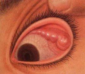 急性泪腺炎