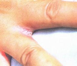 菌血症百科