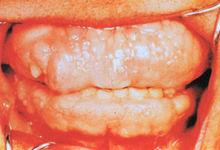 牙龈纤维瘤病百科