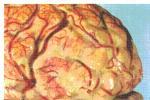 流行性脑脊髓膜炎