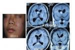 周围神经系统肿瘤