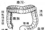 功能性胃肠病