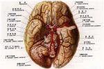 侧脑室肿瘤