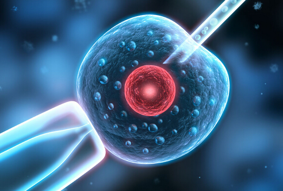 抗精子抗体
