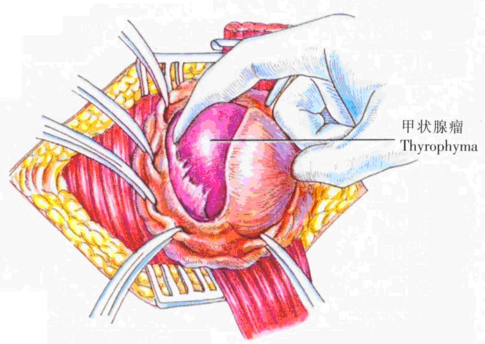 甲状腺瘤摘除术