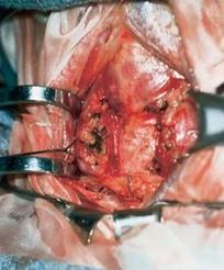 甲状腺腺瘤切除术