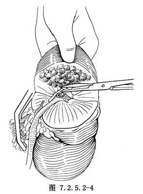 肾部分切除术