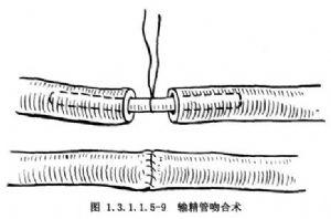 Schouldice法腹股沟斜疝修补术