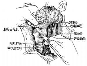 甲状腺癌根治术