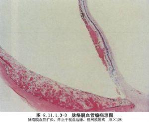 脉络膜肿瘤切除术