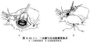 主动脉瓣及二尖瓣双瓣膜置换术