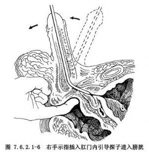 尿道狭窄扩张术