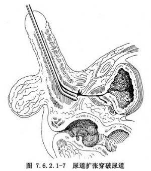 尿道扩张术