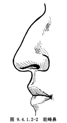 驼峰鼻整形术