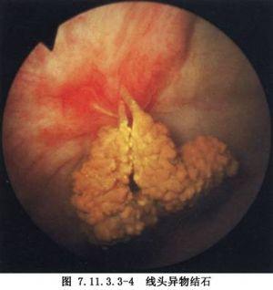 经尿道输尿管镜激光碎石术