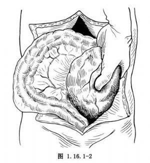 腹膜后肿瘤切除术