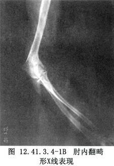 盆骨楔形截骨术