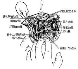 肝动脉结扎术
