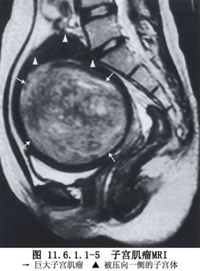 子宫动脉栓塞术