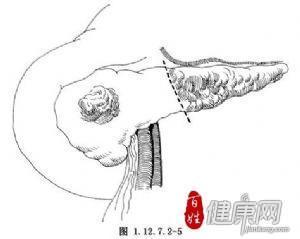 胰腺病损切除术