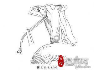 肝叶切除术