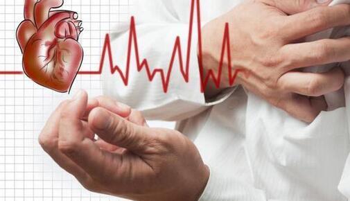 心脏检查需要检查哪些项目?