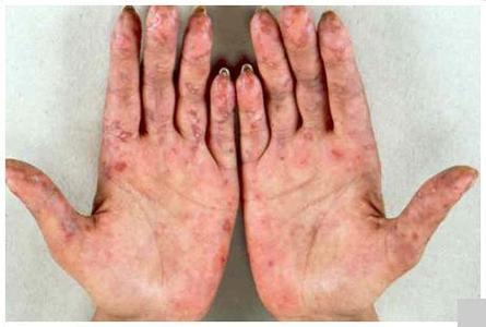 肢端接连出现苍白、发组和潮红反应