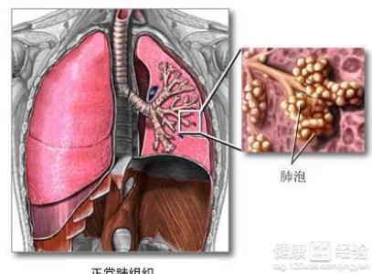 肺泡灌洗液可见大量无定形的碎片