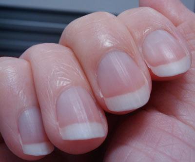 小指指甲有凹陷