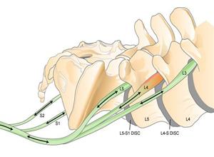 放射后的臂丛神经和腰骶丛损伤